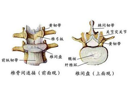 健康 正文  腰椎间盘突出的原因如久站,久坐,负重,长时间弯腰,坐的太