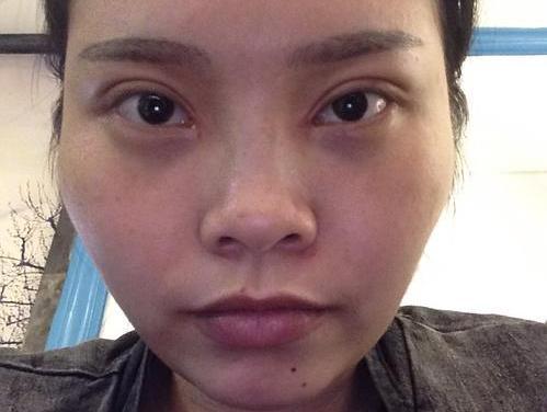"""双眼皮30天了 恢复得自然吗"""""""