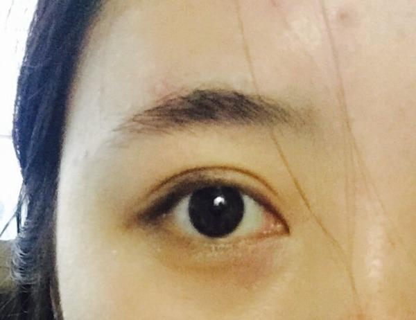 个人意见 别做欧式平行大双眼皮图片