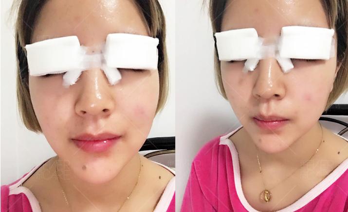 全切平行双眼皮手术体验_全切双眼皮恢复过程_双眼皮手术恢复时间需要多久
