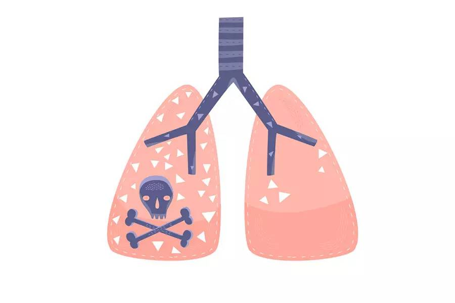 肺癌脑转移怎么办,你要了解这3种治疗方法
