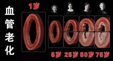 """一招测试身体血管堵没堵,发现晚了,可能危及生命!"""""""