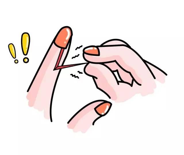 """手指长""""倒刺"""",有人说是缺乏维生素,是真的吗"""