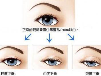 """美诗沁专家韩雪:双眼皮手术能否解决眼皮下垂"""""""