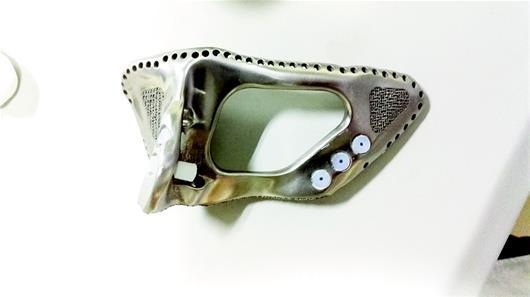 """图文:钛金属3D打印成功造出肩胛骨"""""""