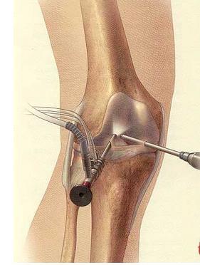 髌骨康复训练步骤图
