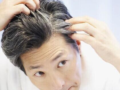 """几个偏方1种技巧 每个都能轻松解决白发问题"""""""
