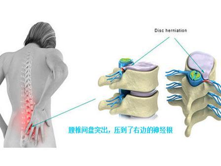 """治疗腰椎间盘突出效果挺乐观的四种方案"""""""