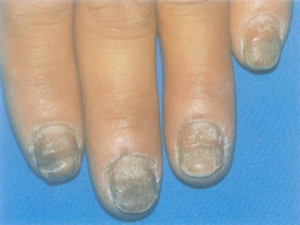 白醋治疗灰指甲吗