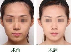 皮肤美白的原理是什么_皮肤美白原理
