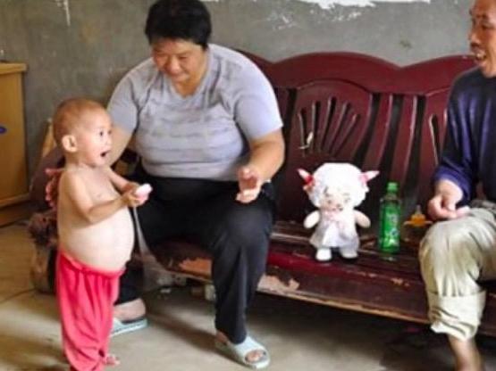 """一岁孩子肚子看起来比其他孩子大,结果被告知怀孕"""""""