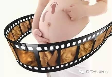 怀孕6个月四维彩超图片