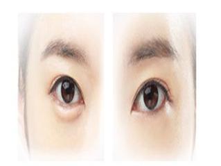 """人体衰老的第一条皱纹是从外眼角开始该怎么办呢"""""""