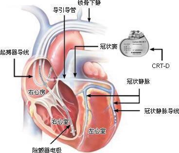 心脏永久起搏器植入术后健康教育