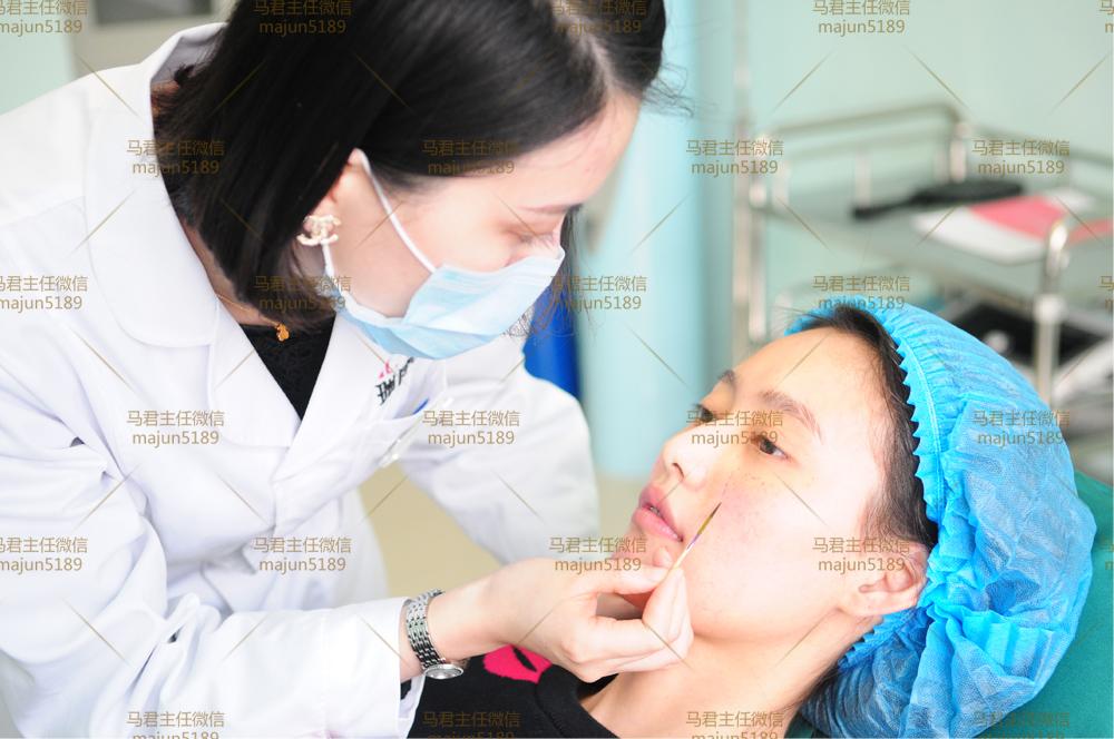 从女生到女神其实只是一支玻尿酸的距离 - 马医生 - 瑞丽舍整形医生马君