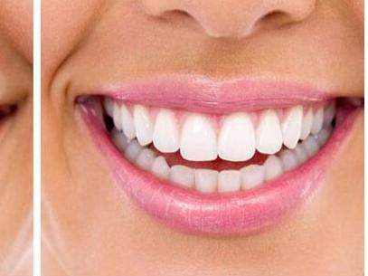 深圳种植牙修复牙齿要多少钱