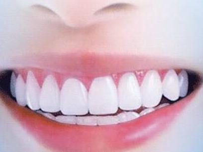 """哪怕天天刷牙也不可避免这些东西,七步快速去除"""""""