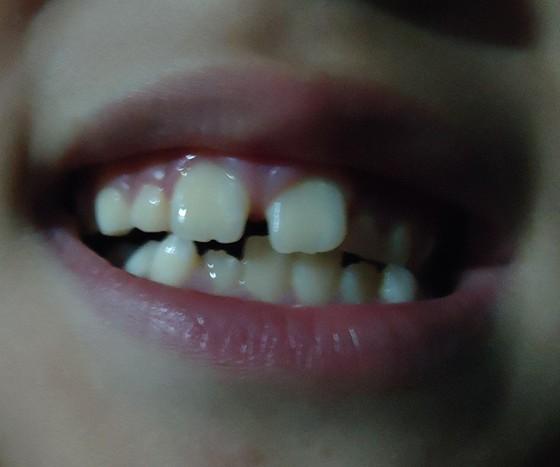 一岁半宝宝牙齿缝隙发黑,怎么回事