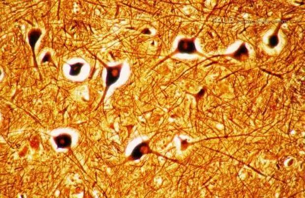 """当细胞结构成为首饰,充满现代艺术感的首饰欣赏"""""""