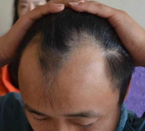 从图片中可以清楚看见29岁的黄先生两边的额角,前额发迹线后退