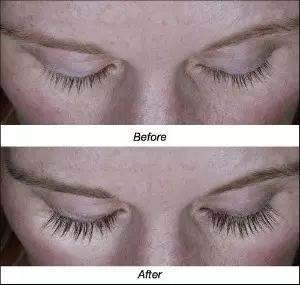 睫毛生长液的原理_睫毛的生长周期