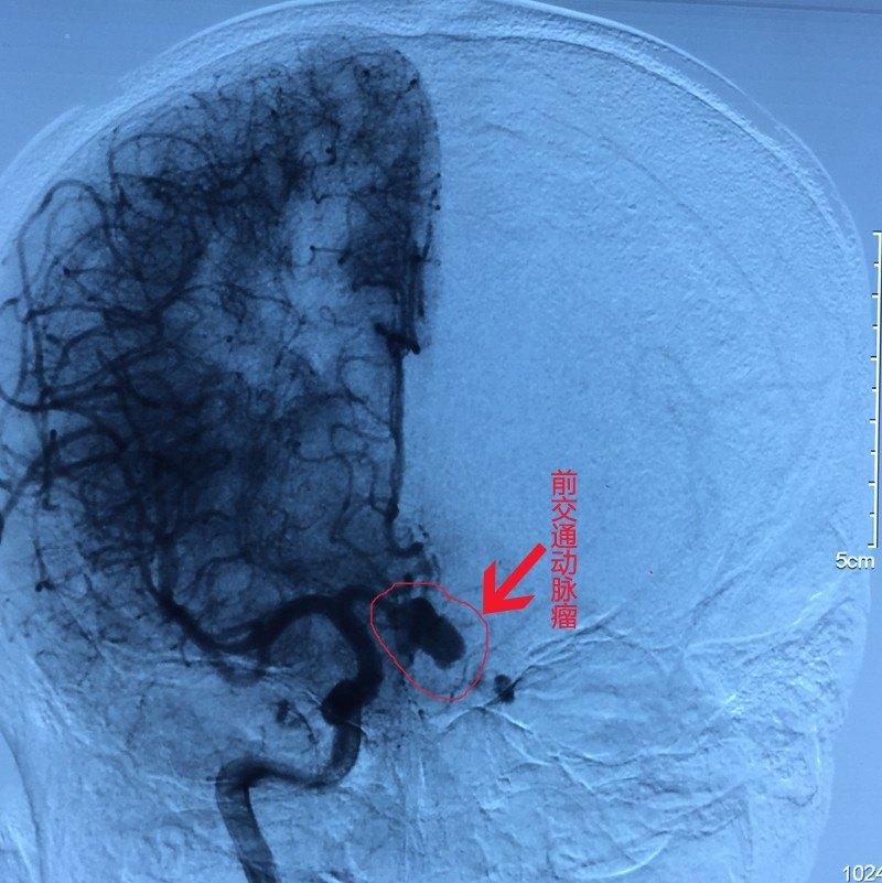 右侧翼点开颅前交通动脉瘤夹闭术