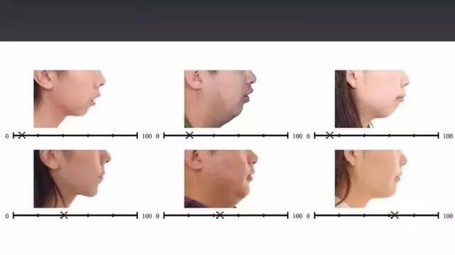 广东省妇幼保健院耳鼻喉科主任医师麦飞指出