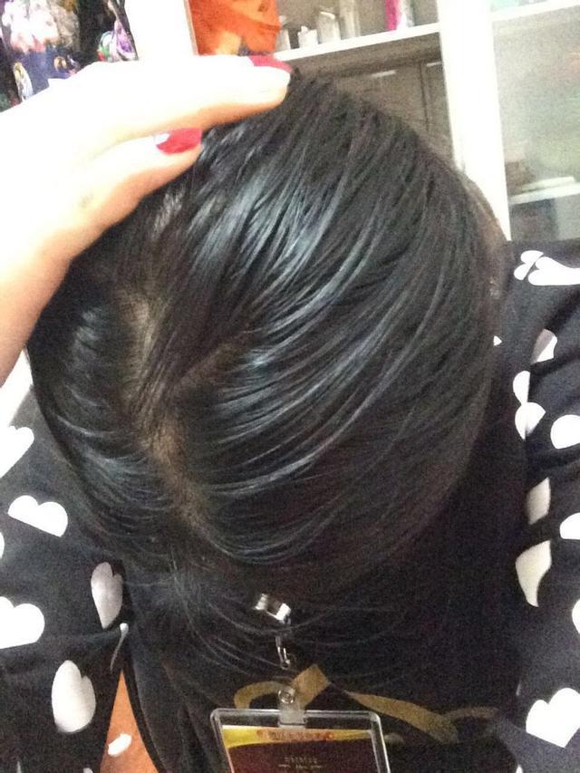 1.早上才洗头下午头发就变得油腻 2.头皮常发痒不抓受不了 3.图片