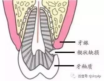 【口腔微学院】每天坚持这么刷牙,牙齿慢慢掉光了! - wanggao339 - wanggao339 的博客