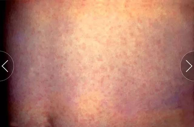 医生必须了解的 9 种病毒性疾病的皮肤黏膜表现