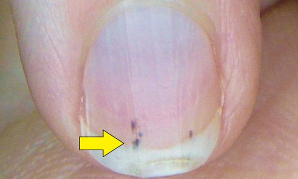 上图有可能是亚急性细菌性心内膜炎的症状.这种裂片性出血指甲一