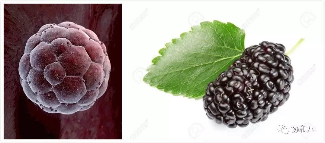 健康  【草莓舌】strawberry tongue 舌乳头肿胀,发红类似草莓,见于