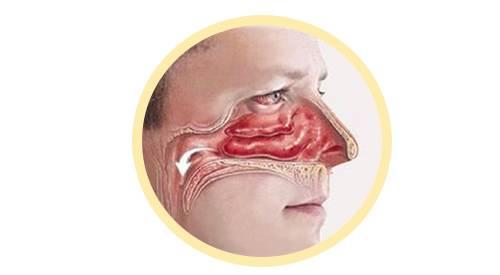 其实,鼻腔里并不是一马平川的,而是有三片重要的结构——鼻甲三兄弟