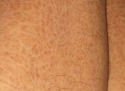 鱼鳞皮肤_尤其是在寒冷的冬季由于气候过于的干燥,鱼鳞病所产生的皮肤损害现象
