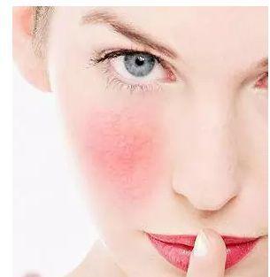 脸部皮肤薄怎么办_时尚 正文  由于敏感肌肤一般角质层都很薄,或者皮肤屏障有不同程度的