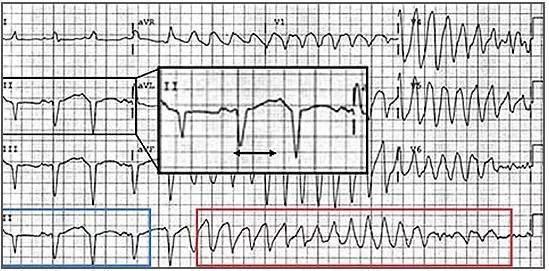 警惕 6种可能致命的心电图异常不容忽视