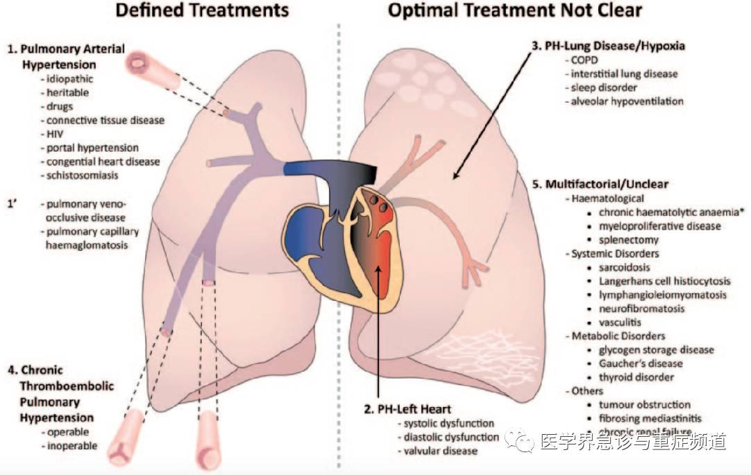 H分类:分类在左侧的可以使用针对肺血管的特异性治疗以改善患者图片