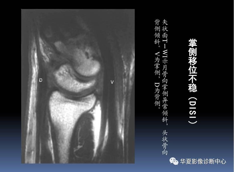 腕关节解剖 MR诊断