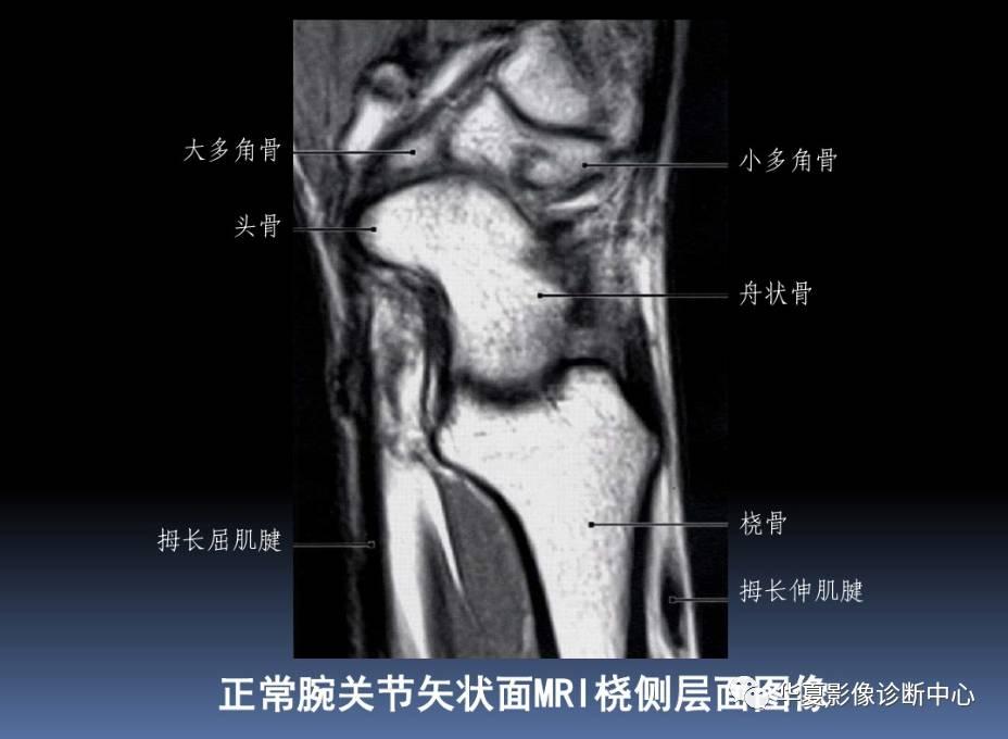 腕关节MRI解剖及常见病诊断