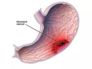 的病变位置主要胃窦,呈多灶性萎缩,多由   幽门螺杆菌   感染引起的