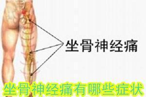 了解坐骨神经痛的症状做到及时发现