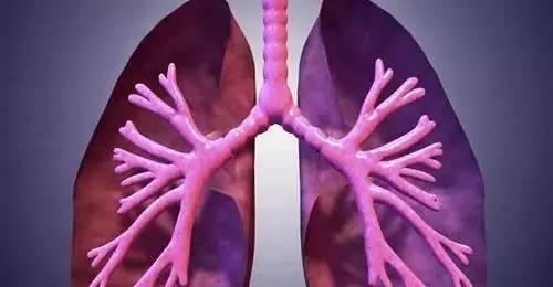 明明不咳嗽,为什么一检查就是肺癌?