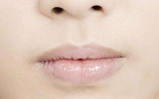 嘴唇发白(无血色)