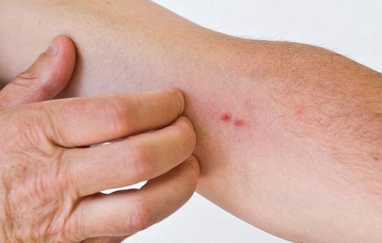 皮肤瘙痒病怎么办 皮肤瘙痒怎么办以及注意事项