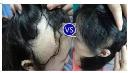m字脱发,斑秃,头部疤痕(外伤/烫伤,烧伤,长疮感染造成)等永久性毛发图片