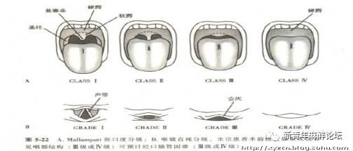 健康 正文  3 mallampati分级:嘱病人张嘴伸舌,观察咽部结构 Ⅰ级: 见