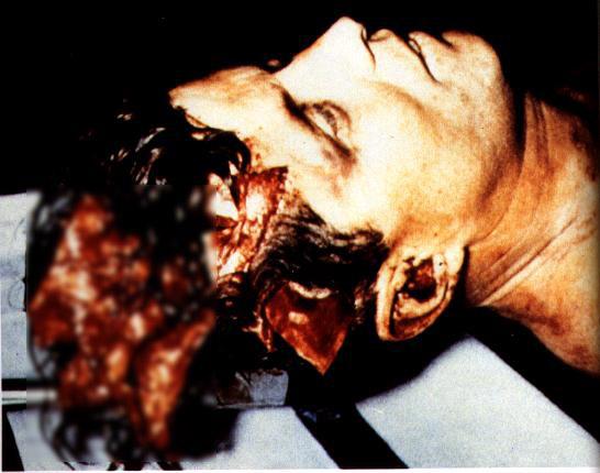 肯尼迪遇刺,头皮被子弹刨开,后脑打出9厘米大洞