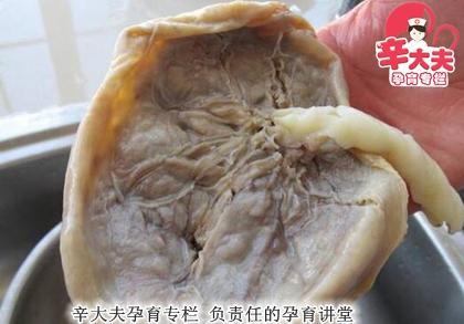 胎盘的发育过程图片