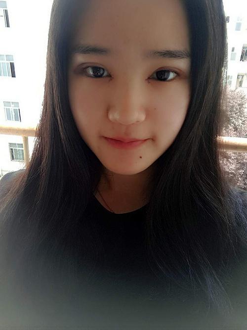 韩式定点双眼皮拆线时,医生都感叹我恢复神速