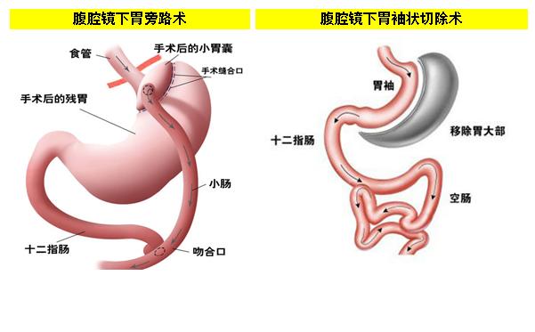 切胃减肥手术的价格图片